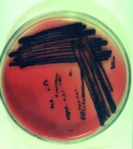 bakterologiai vizsgálat